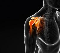 Kalkschulter: Was stoppt den akuten Schmerz?