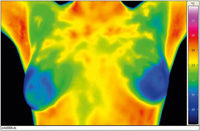 Thermographie der Brust