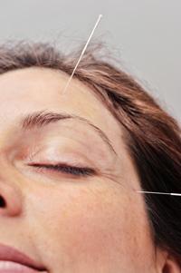 Mit Akupunktur den Gesichtsnerv aktivieren