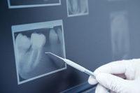 Röntgenaufnahme von Zahn