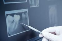 Zahnherde – Gefahr für den gesamten Organismus