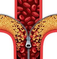 Blutgefäß mit Reißverschluss