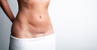 Narben entstören, Lebensenergie stärken