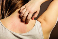 Frau kratzt sich Rücken