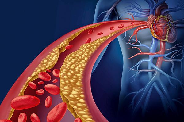 Neue Wirkstoffe gegen Arteriosklerose