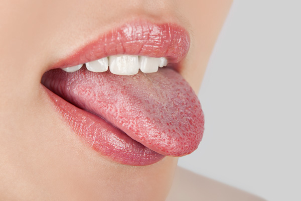 Zeig' mir Deine Zunge!